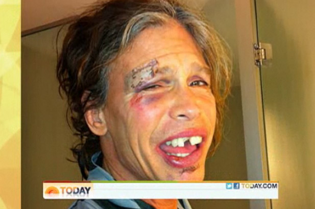 Foto mostra resultado depois da queda de Steven Tyler
