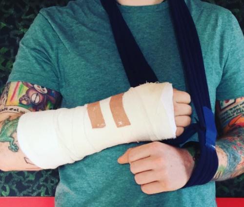 Segundo Ed, acidente 'pode afetar alguns dos próximos shows' (Reprod,/Instagram)