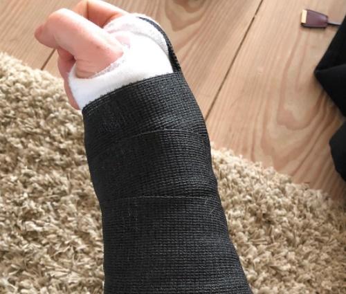 Cantor quebrou pulso direito e cotovelo esquerdo (Reprodução/Instagram)